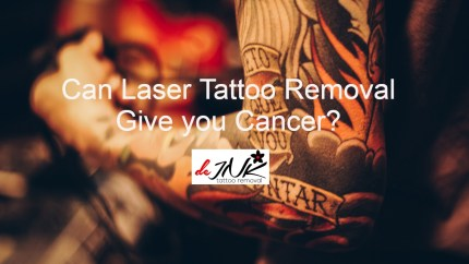 cancer and laser tattoo removal