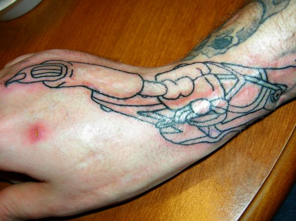 100 Tattooing Over Scar Tissue All You Really Want Ideas And Designs