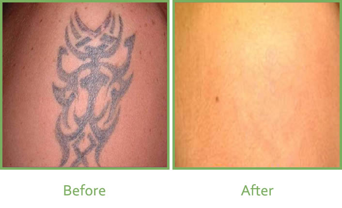 Laser Tattoo Removal Services In South Wales Vale Laser Ideas And Designs