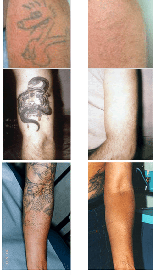 28 Tattoo Removal Cost India How Much Does It Cost Ideas And Designs