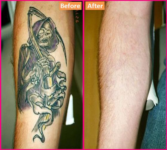 How To Get Rid Of A Tattoo At Home Ideas And Designs