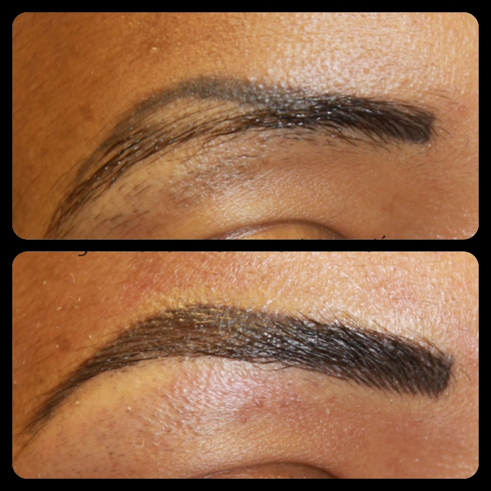 Laser Tattoo Removal Of Semi Permanent Makeup And Ideas And Designs