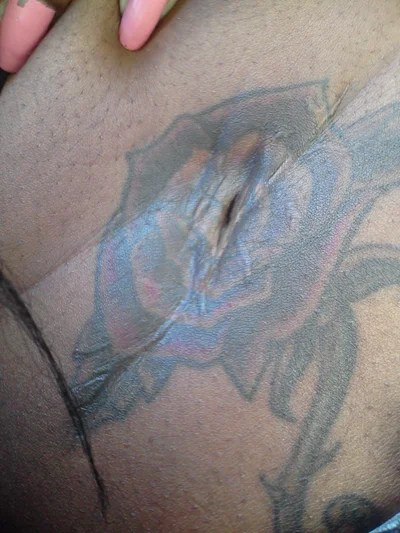Can A Colored Tattoo Be Successfully Removed From Dark Ideas And Designs