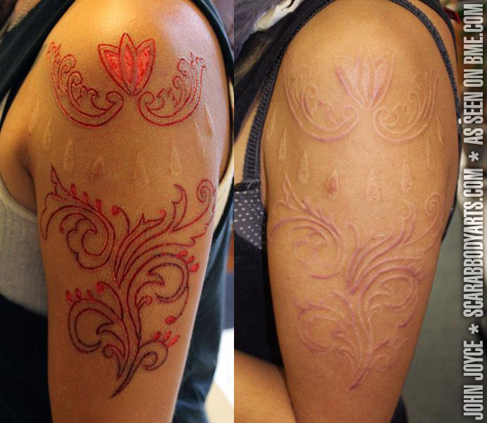 Flesh Removal Scarification Bme Tattoo Piercing And Ideas And Designs