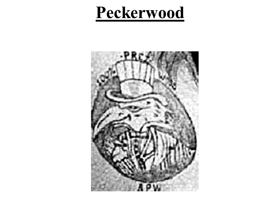 28 Peckerwood Tattoo 17 Best Images About Tattoos I Ideas And Designs