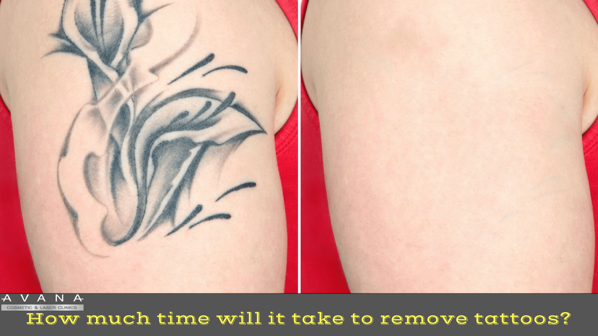 How Much Time Will It Take To Remove Tattoos Ideas And Designs
