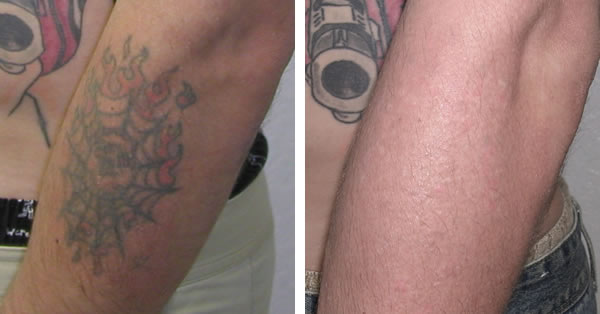 Laser Tattoo Removal Before And After Pictures Tattoo Ideas And Designs