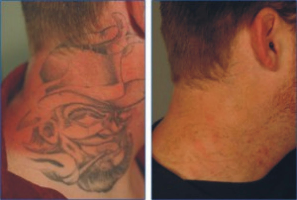 Tattoo Removal Creams Tips And Tricks Ideas And Designs