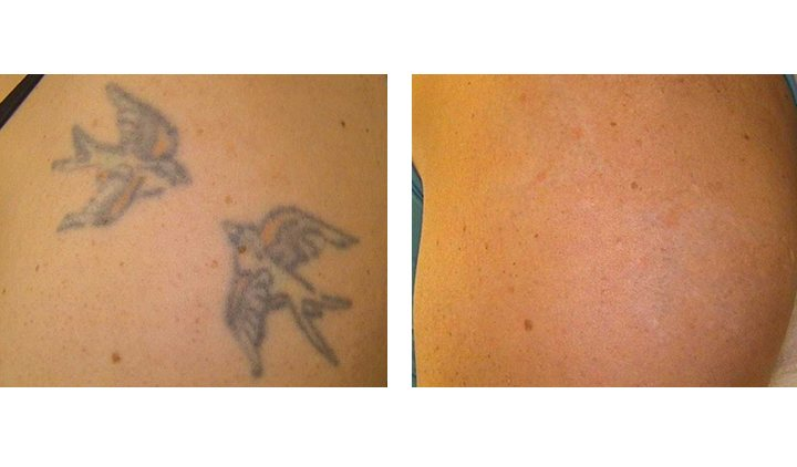 Tattoo Removal Before And After Pictures Indianapolis In Ideas And Designs