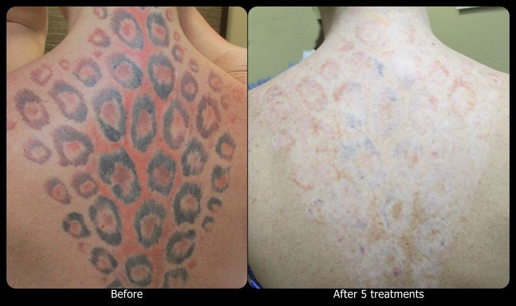 5 Points To Consider Before Laser Tattoo Removal Digikarma Ideas And Designs