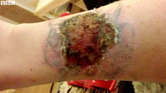 Pay Zero For Advice Never Buy A Diy Tattoo Removal Kit Ideas And Designs