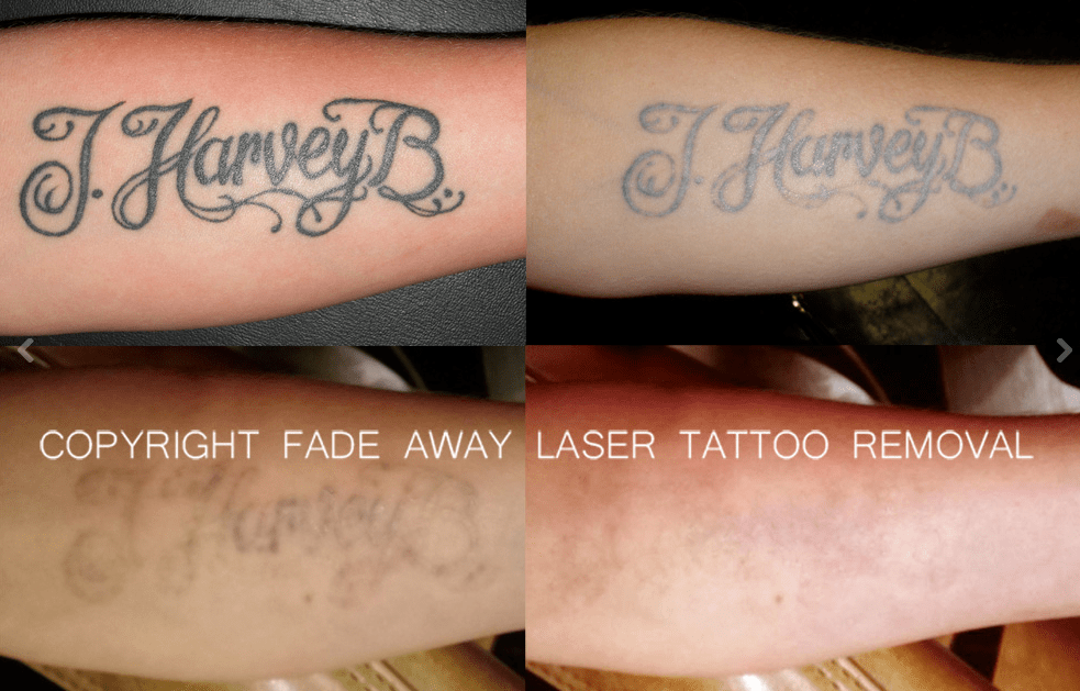 Fade Away Laser Tattoo Removal In Duluth Mn Whitepages Ideas And Designs