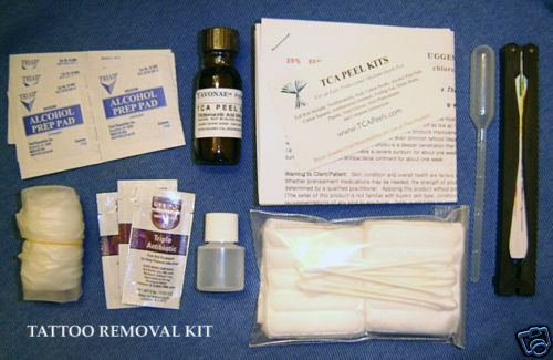 All Inclusive Tattoo Removal Remover 100 Acid Kit Ebay Ideas And Designs