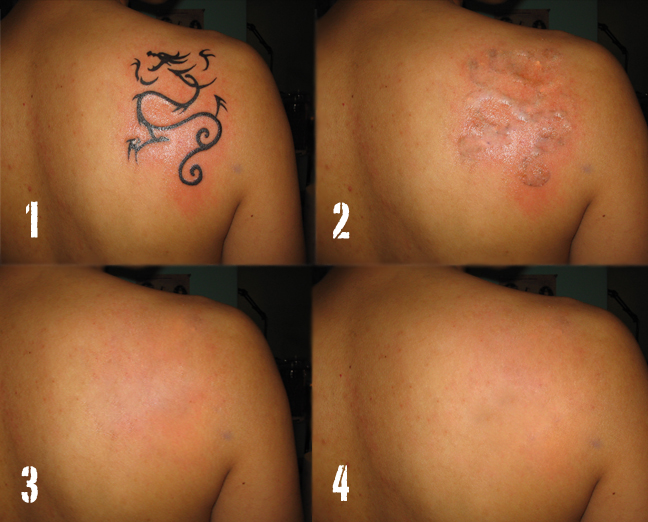 Partial Tattoo Removal North Houston Laser Tattoo Removal Ideas And Designs