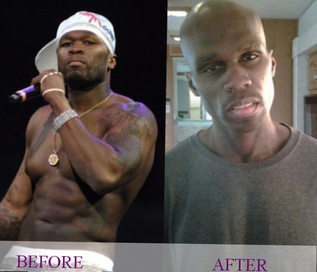 15 50 Cent After Tattoo Removal 14 Celebs Who Ideas And Designs
