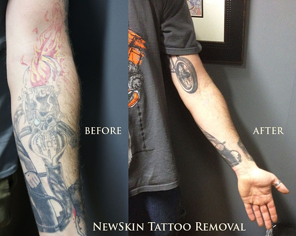 Atomic Ink Tattoo Laser Tattoo Removal Before And After 1 Ideas And Designs