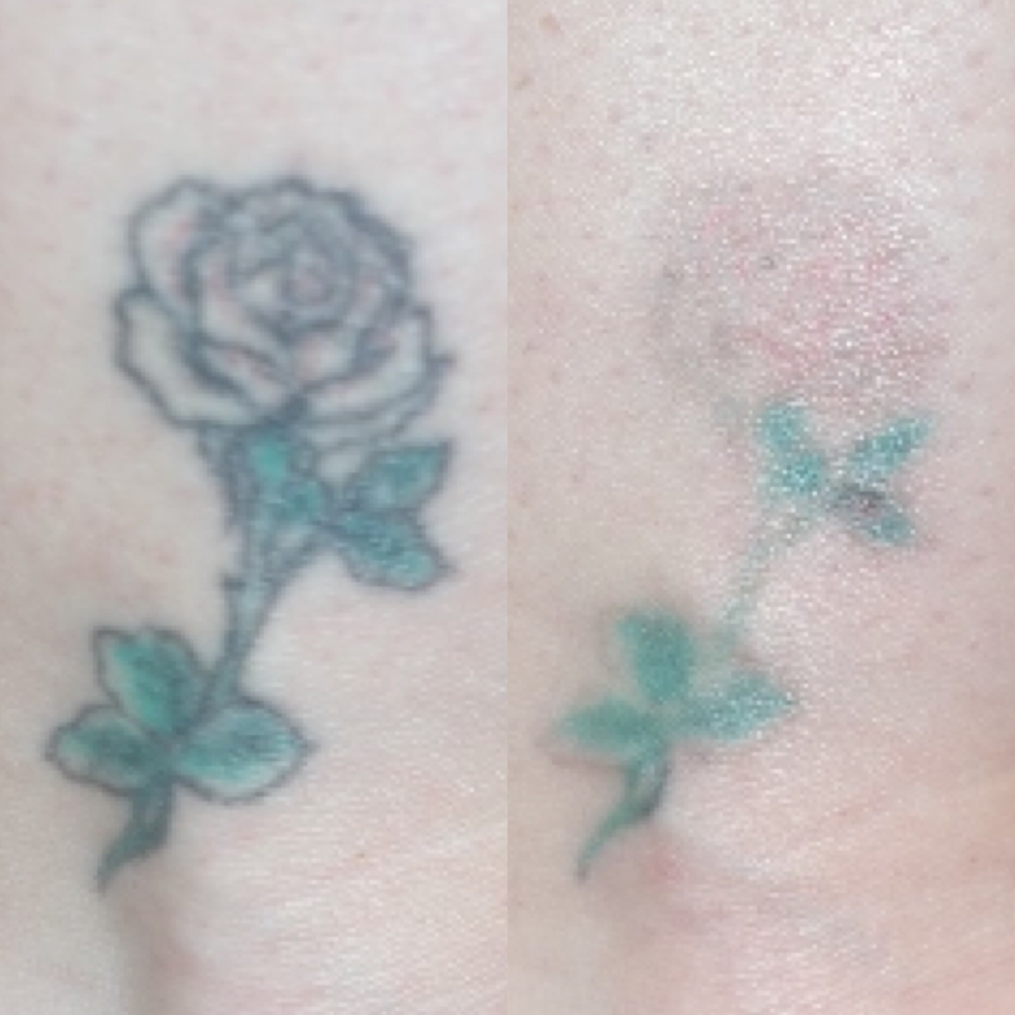 Florida Doctor Introduces Next Generation Laser Tattoo Ideas And Designs