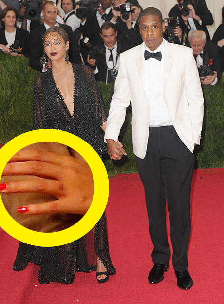 Beyonce Removes Ring Finger Tattoo Erases Jay Z Eternal Ideas And Designs