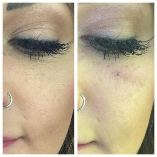 Beauty Spots – Medicare Cosmetics Ideas And Designs