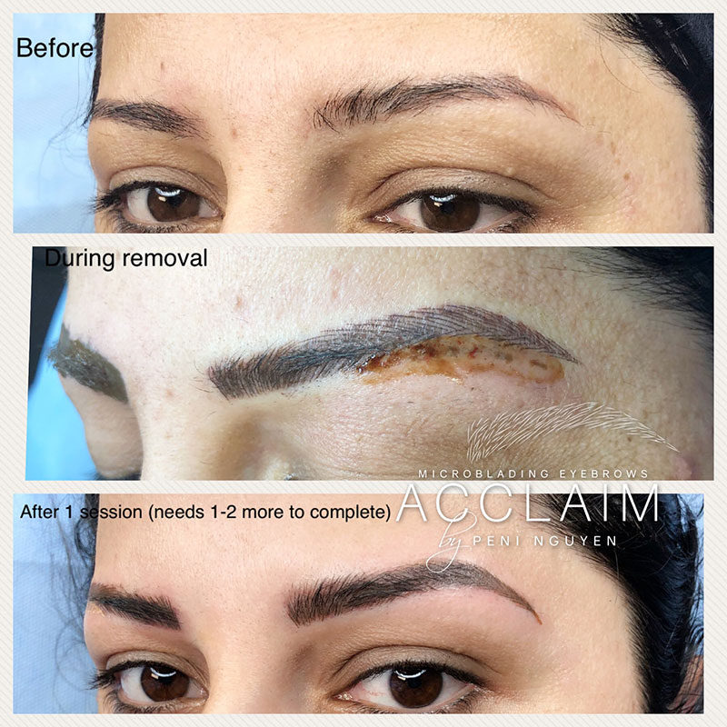 Eyebrow Tattoo Removal Arlington Microblading Removal Tx Ideas And Designs