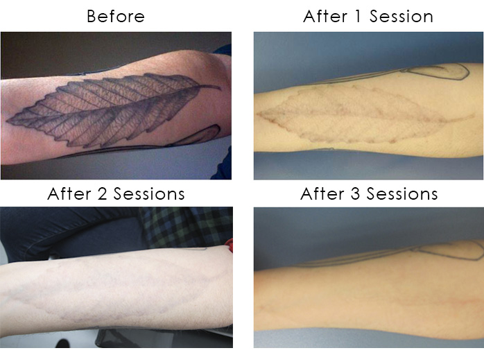 Laser Tattoo Removal Schweiger Dermatology Group Ideas And Designs