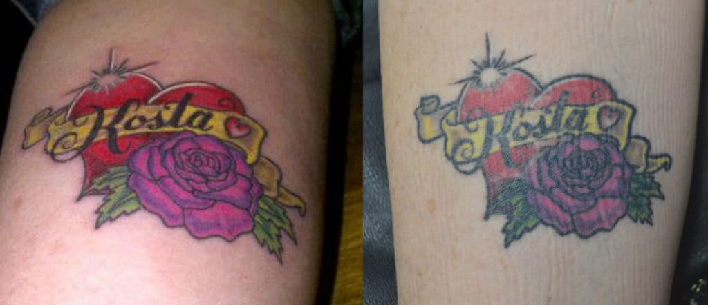 Getting A Tattoo Cover Up In Toronto How Does Tattoo Ideas And Designs
