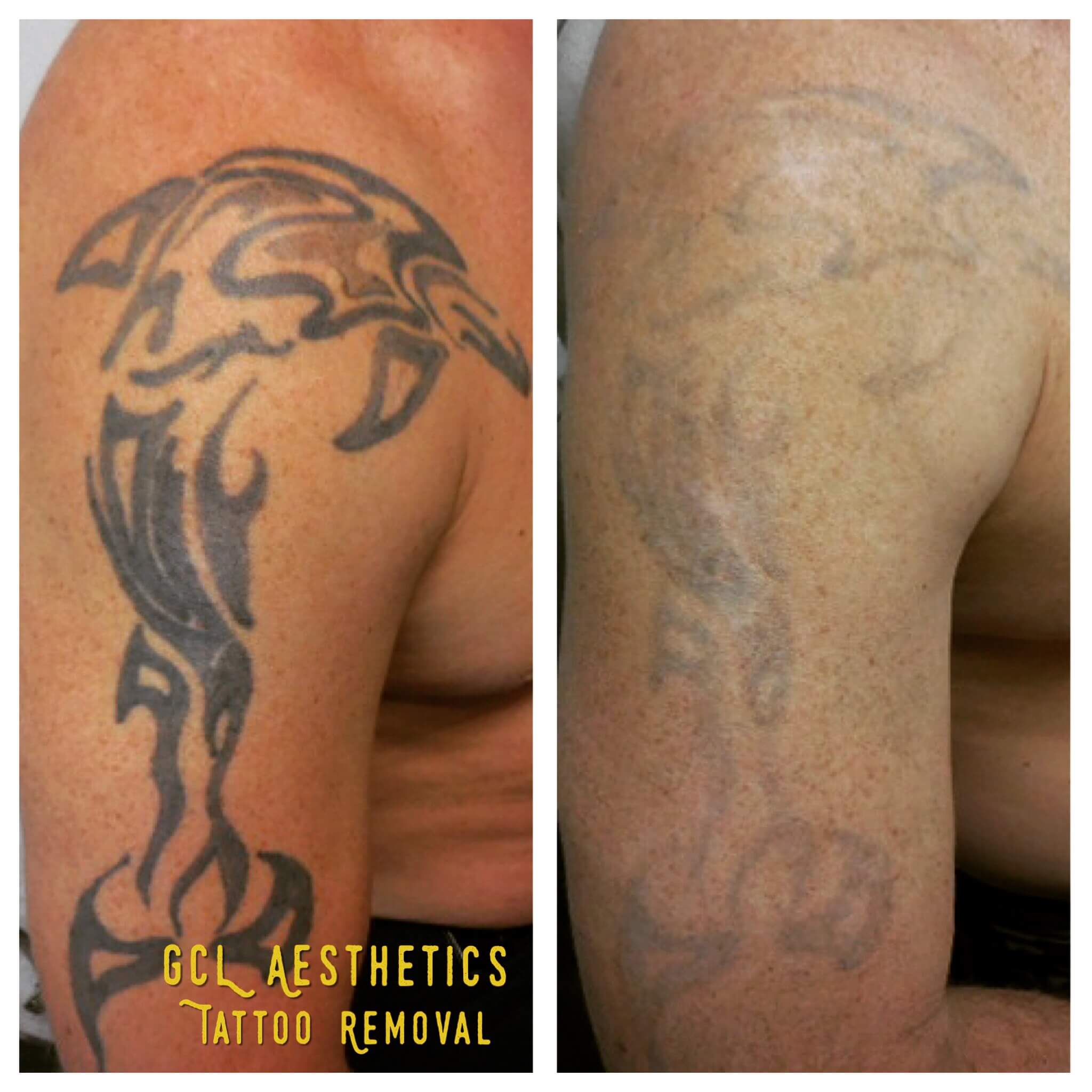 Orange County Tattoo Removal Gentle Care Laser Aesthetic Ideas And Designs