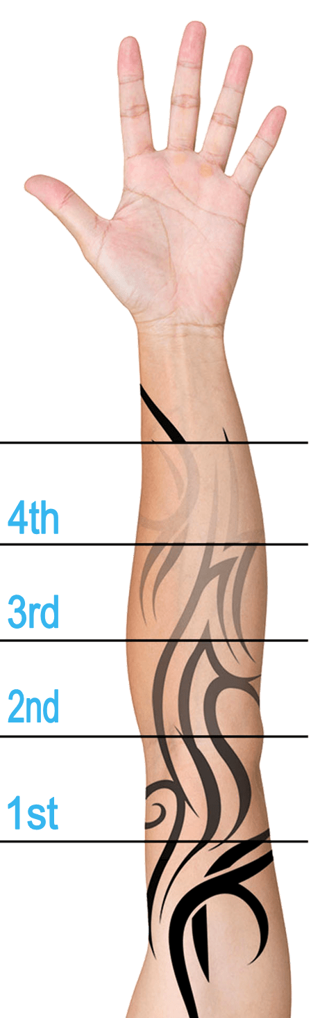 Laser Tattoo Removal In Plymouth South Devon Laser Hair Ideas And Designs