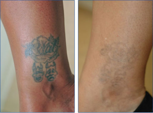 Tattoo Removal Her Blog Ideas And Designs
