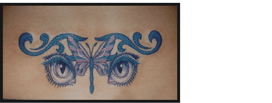 Artistic Skin Design Inc West Indy Indianapolis In Ideas And Designs