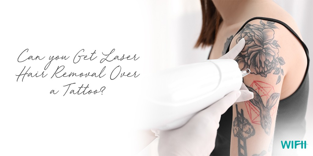 Can You Get Laser Hair Removal Over A Tattoo Ideas And Designs
