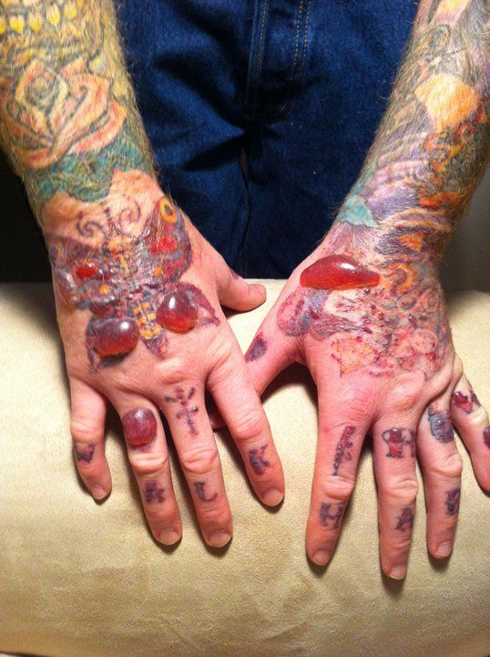 Worst Tattoo Removal Nightmares Holy Cow Nightmare Ideas And Designs