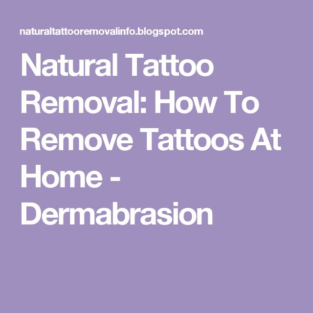 Natural Tattoo Removal How To Remove Tattoos At Home Ideas And Designs