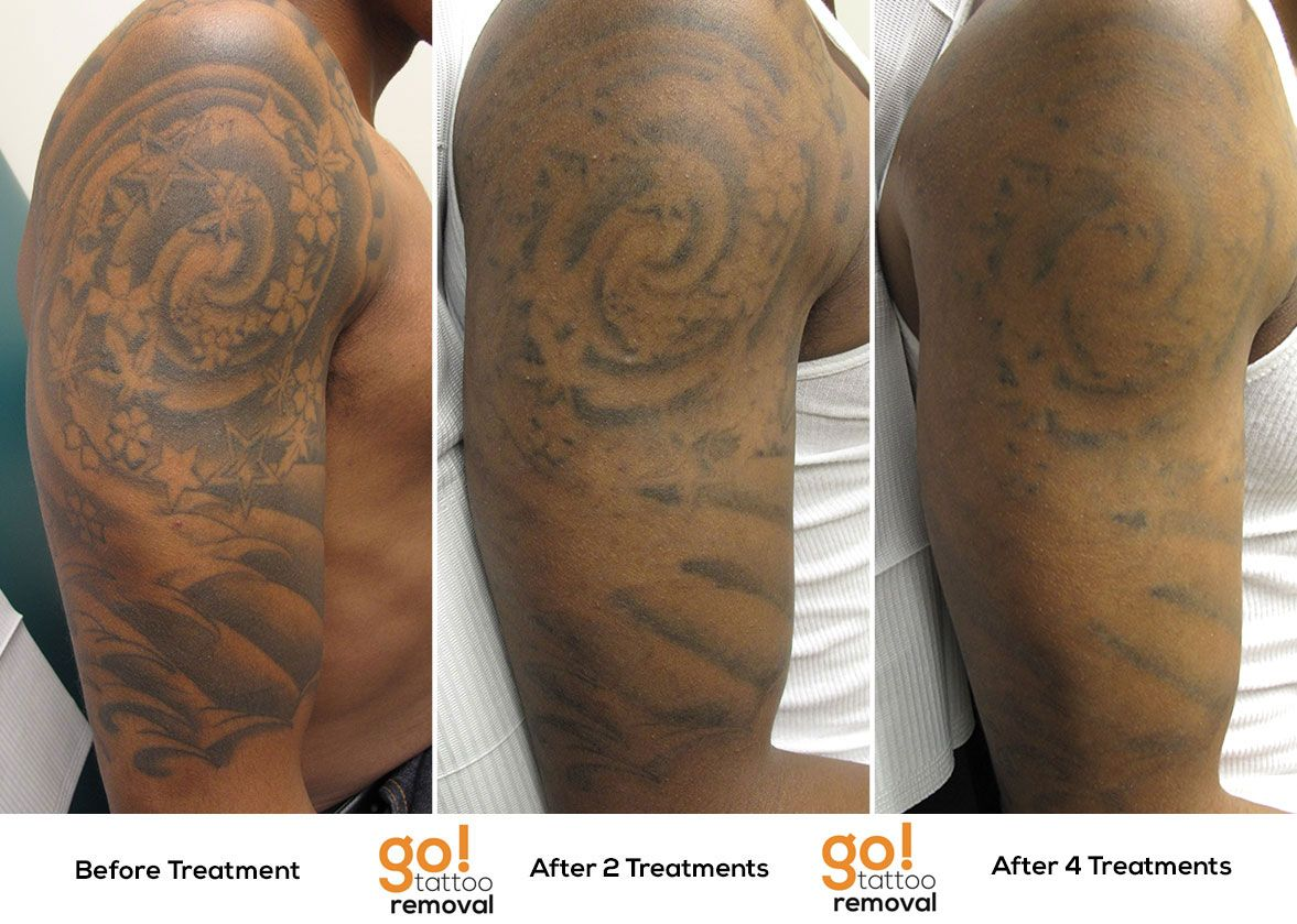 Stellar Results On This Half Sleeve After 4 Laser Tattoo Ideas And Designs