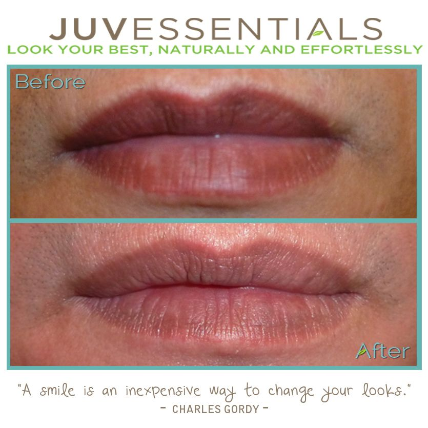 If You Are Unhappy With A Lip Tattoo Procedure You Ideas And Designs