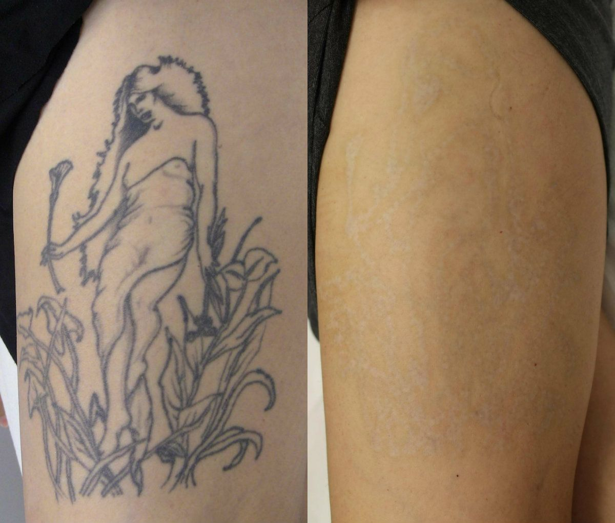 Tattoo Temoval Before And After Pictures Tattoo Removal Ideas And Designs