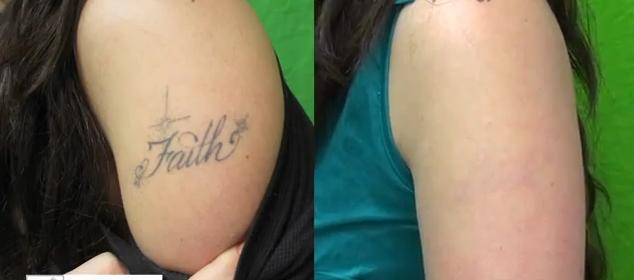 Laser Tattoo Removal Before And After Ideas And Designs