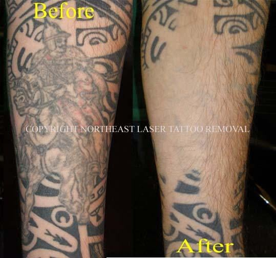 This Is An Actual Result Of Our Laser Tattoo Removal Ideas And Designs