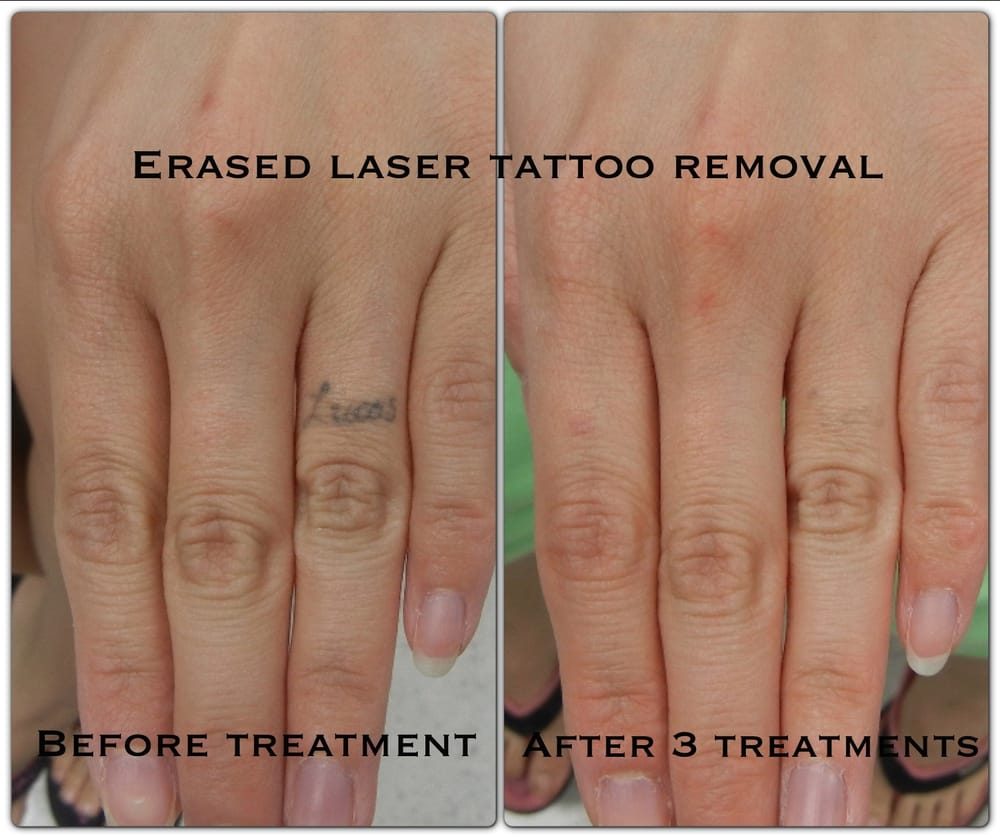 After The 3Rd Treatment Erased Tattoo Removal Las Vegas Ideas And Designs