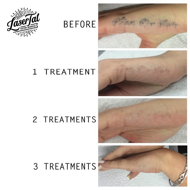 Lasertat Tattoo Removal Adelaide Ideas And Designs