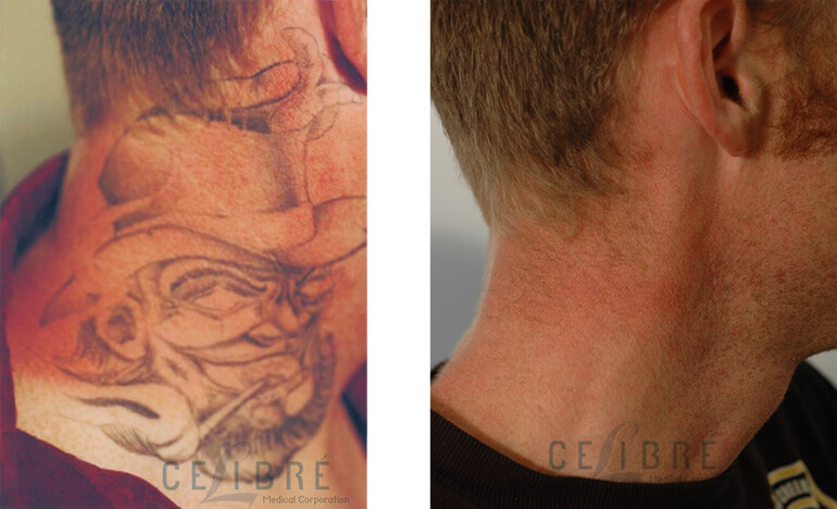 How Does Laser Tattoo Removal Work Ideas And Designs