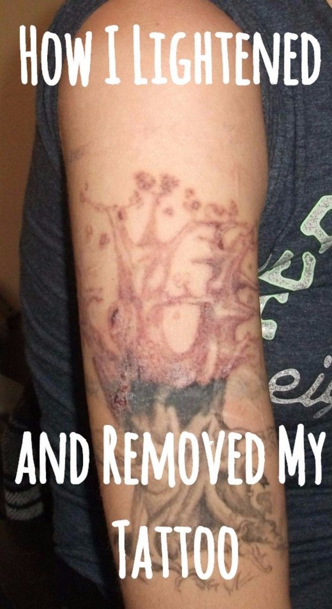 My Experience Lightening And Removing My Tattoo At Home Ideas And Designs
