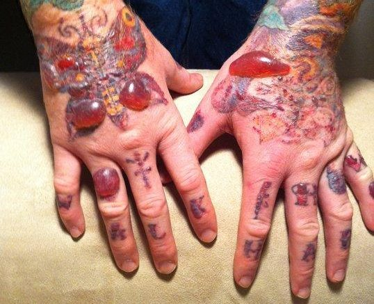 100 Post Laser Tattoo Removal Tattoo Removal In Ideas And Designs