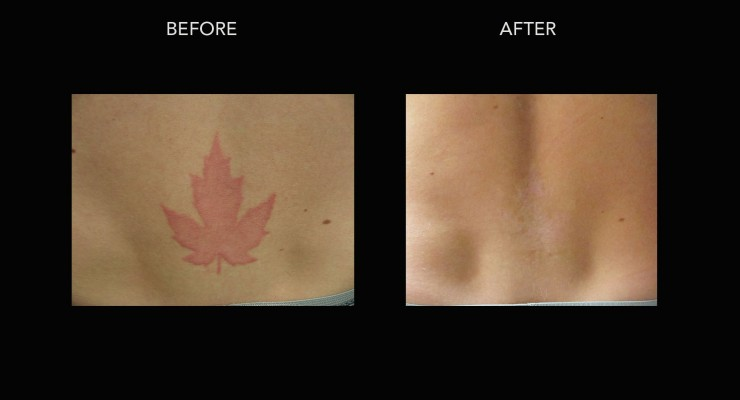 Laser Tattoo Removal In Kelowna With Dr Crippen Dermmedica Ideas And Designs