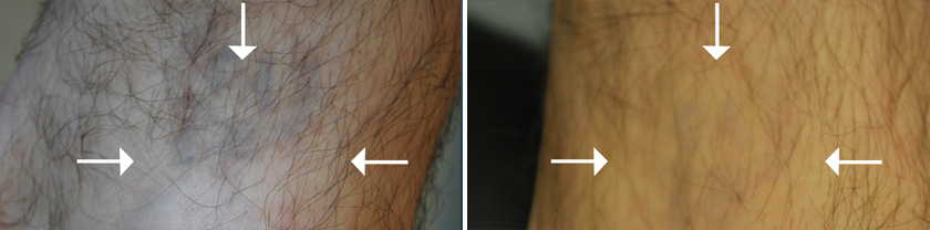 Laser Tattoo Removal New York Naturalase Qs Nyc Ideas And Designs