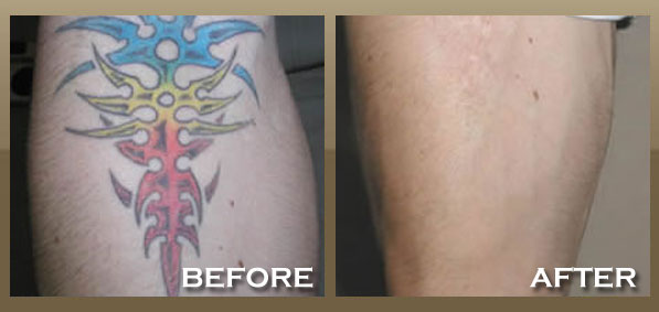 Laser Tattoo Removal Skinpeccable Ideas And Designs