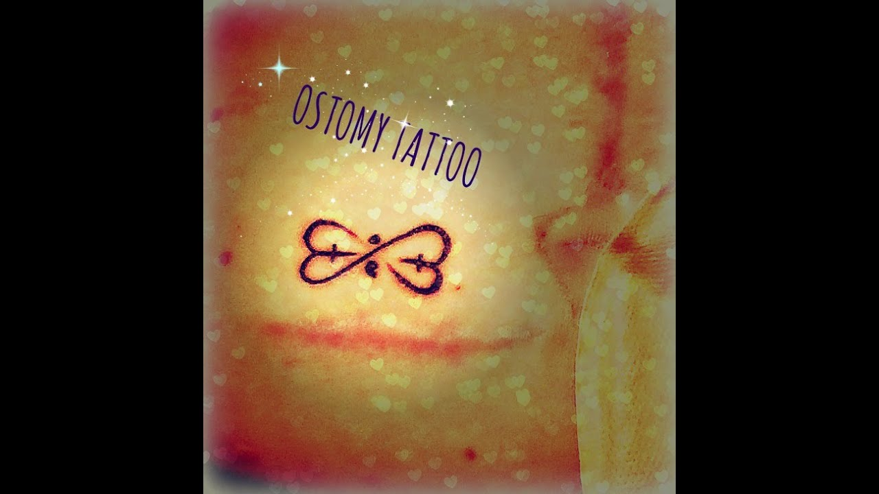 One Year Ostomy Tattoo Youtube Ideas And Designs