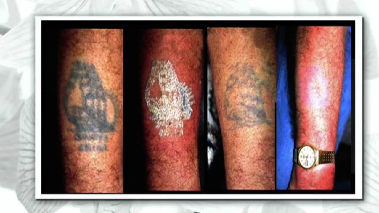 Picosure Laser Tattoo Removal Treatment On The Steven And Ideas And Designs