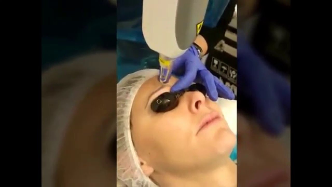 Eyebrow Tattoo Removal Permanent Makeup Before And After Ideas And Designs