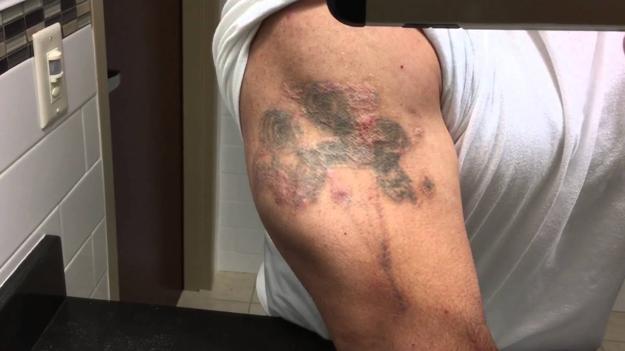 Tca 50 Tattoo Removal 1 Year Update Youtube Ideas And Designs